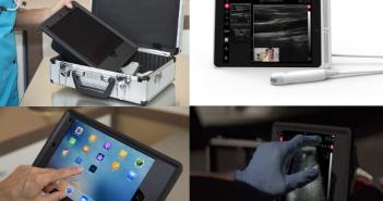 Oscult, un échographe mobile qui révolutionne le diagnostic médical